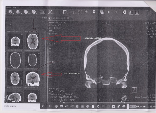 Scan circled by Dr Trend see attached letter